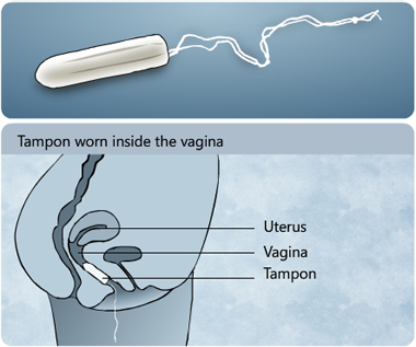 Illustration of a tampon and showing how a tampon is worn inside the vagina to absorb menstrual fluid coming out of the uterus - Menstrupedia